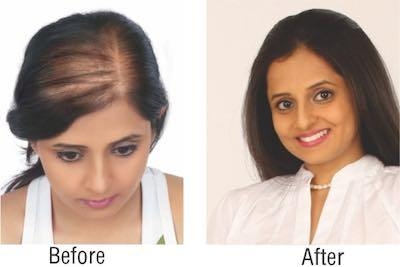 Sangeeta Sing Before after hair treatment