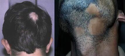 non_scarring_alopecia