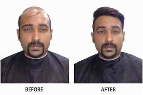 Chinu Kwatra hair system before after