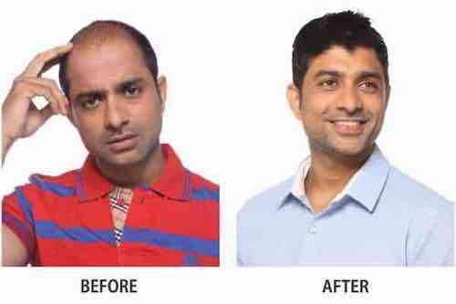 Anup Kumar balding treatment before after