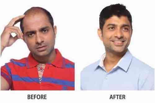 Anup Kumar balding treatment before after
