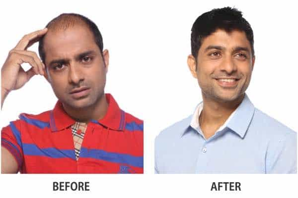 anup kumar hair treatment before after