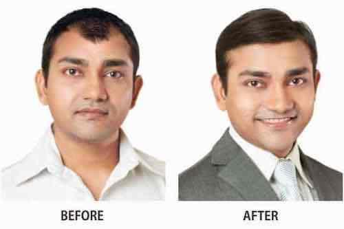 Mihir Khurana Before after hair treatment