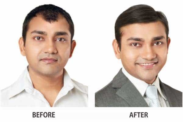 mihir khurana non surgical before after