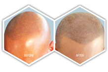 male pattern baldness solution