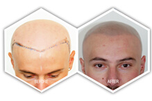 complete hair loss solution