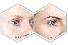 anacover treatment for women eyebrows