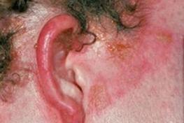 skin redness patch