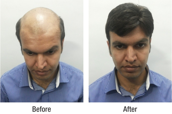 Mukul Mishra hair system before after