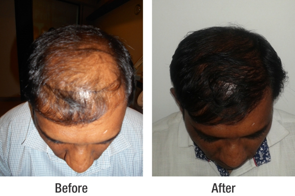 hair transplant in pune before after