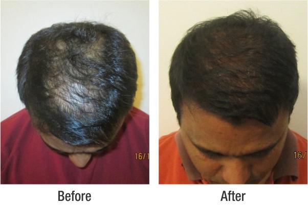 ajay-shaw-surgical-lajpatnagar