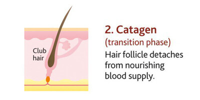 hair focile stage catagen