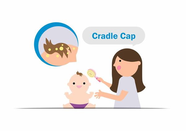 cradle-cap