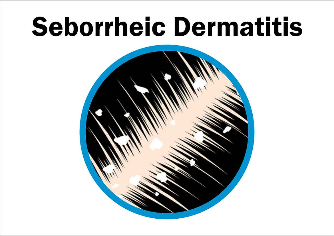 Seborrheic Dermatitis Symptoms Causes Treatment
