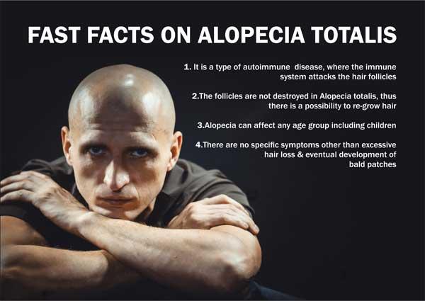 alopecia-totalis