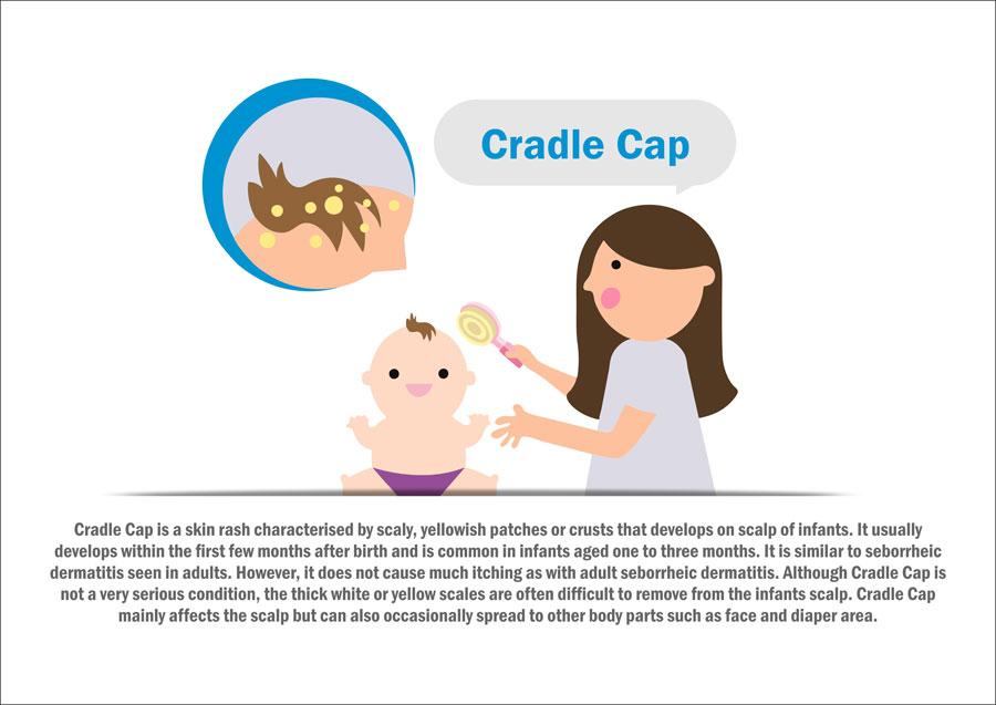 cradle-cap-updated