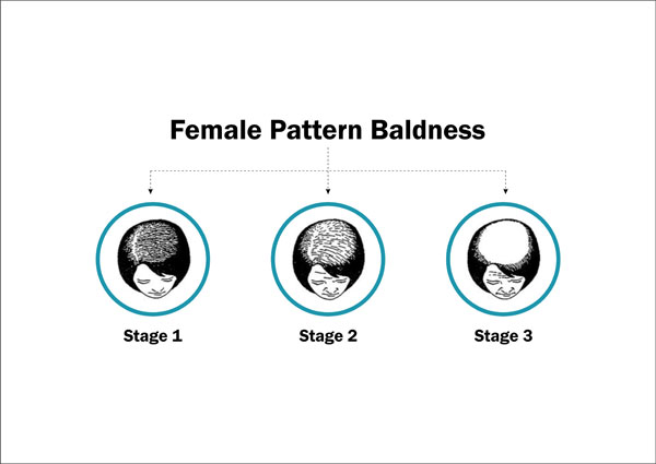 female-pattern-baldness