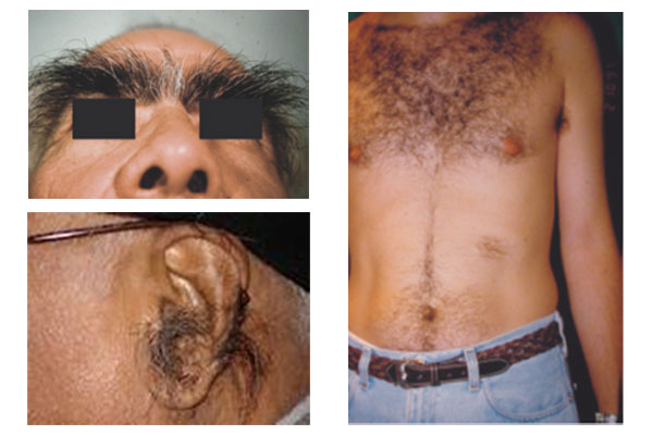 hypertrichosis-info-graphic