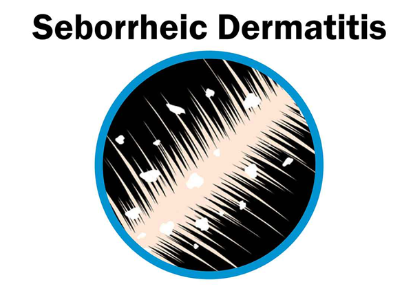 seborrheic-dermatitis-updated