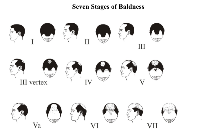 stages Baldness