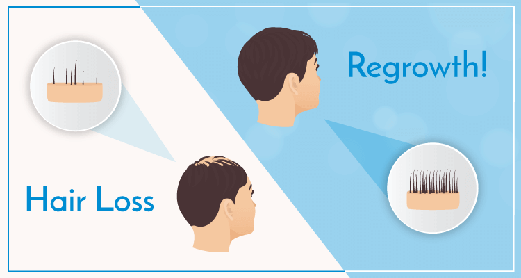 Hair Loss, Regrowth