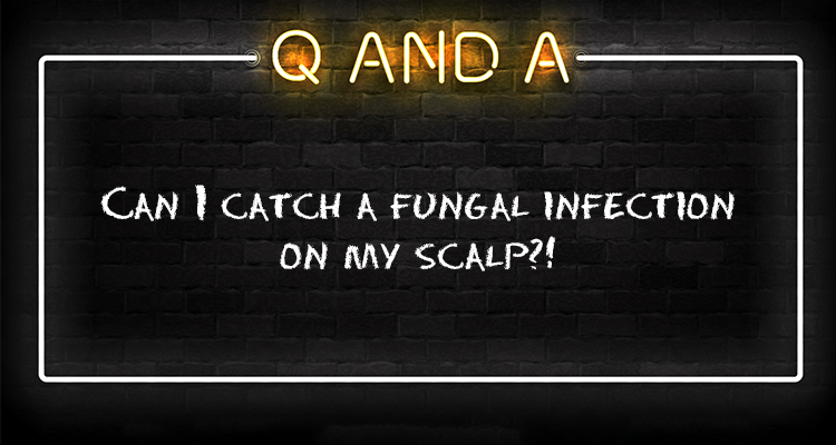 Can I catch a fungal infection on my scalp?!