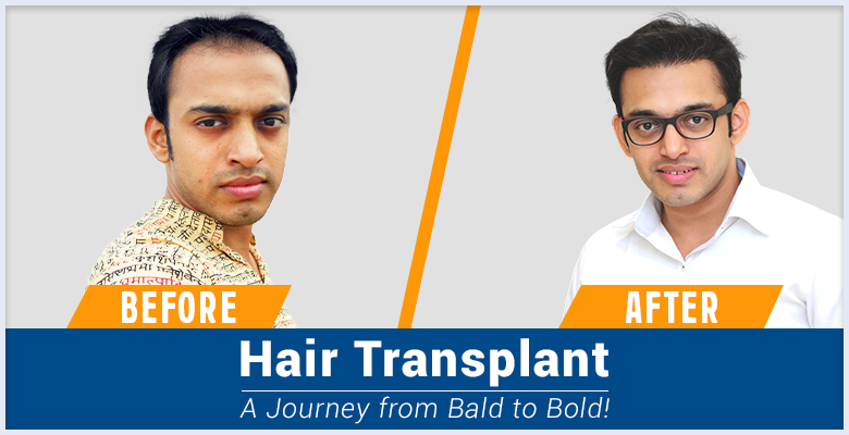 AHI Hair Transplant with the experts at RichFeel|hair&scalp_problems|AHI_technique|male_pattern_baldness