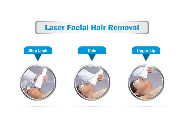 Laser Facial Hair Removal Symptoms Causes Treatment Prevention