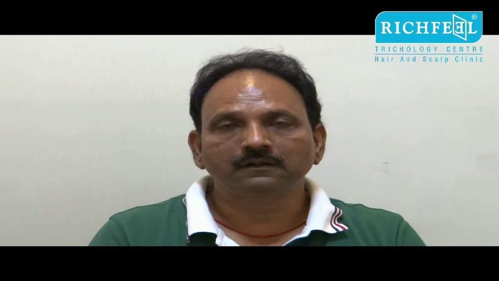 Mr. Shambhunath Jaiswal - Hair transplant
