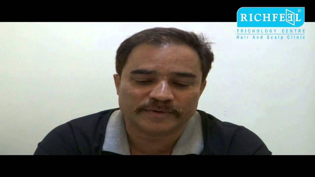 Mr. Vinay Nakhwa - Hair transplant