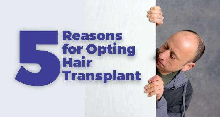 Opting Hair Transplant