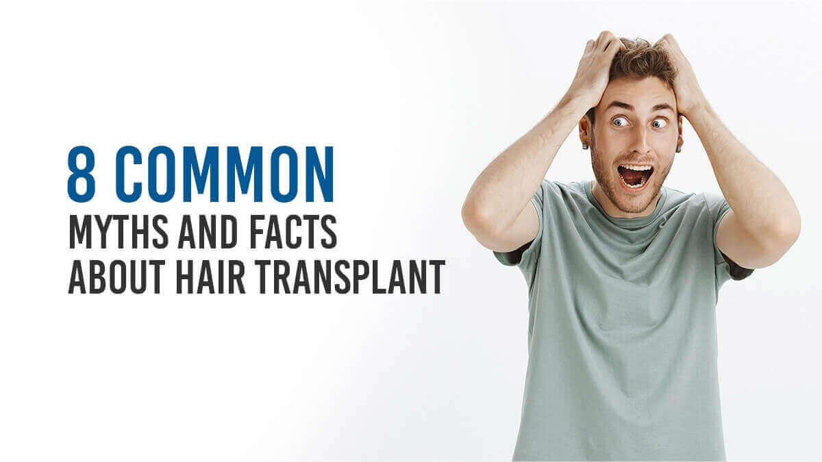 8 common Myths and Facts about Hair Transplant